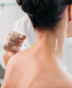 Agopuntura per la cura di ansia e depressione